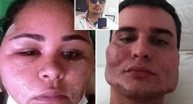 """Doctor dejó caras """"deformadas"""" a pacientes al practicarle estiramiento facial."""