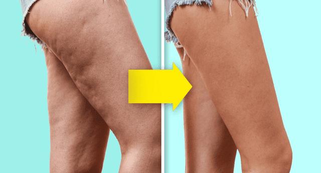 Reconoce qué tipo de celulitis tiene y sepa cómo eliminarlo de tu piel.