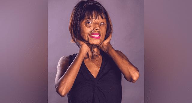 Mujer desfigurada con ácido sueña en convertirse en modelo y lo está logrando con su belleza.