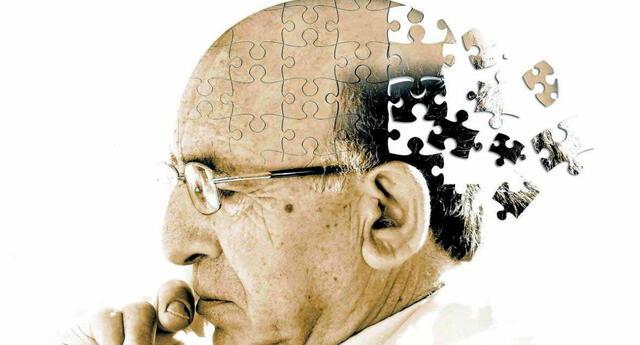 Este nuevo estudio representa un gran avance en la búsqueda de una vacuna o tratamiento contra el Alzheimer.   Fuente: Getty Images.