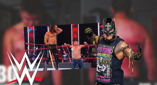 WWE: Así quedó la espalda del hijo de Rey Mysterio tras ser golpeado 30 veces con palos de Kendo