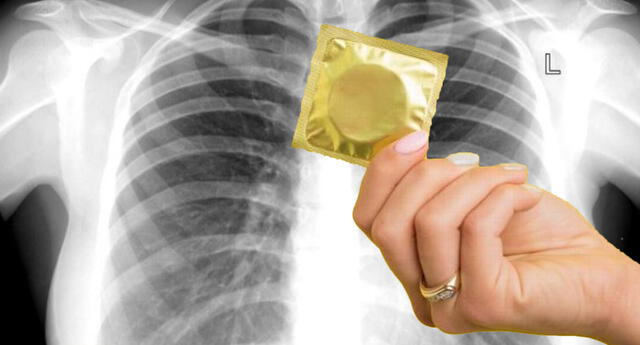 ¡Insólito! Médicos encuentran condón en pulmón joven de 27 años, caso se hace viral